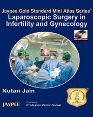 Jaypee Gold Standard Mini Atlas Series: Laparoscopic Surgery in Infertility and Gynecology