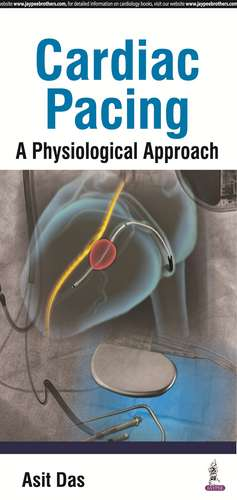 Cardiac Pacing A Physiological Approach