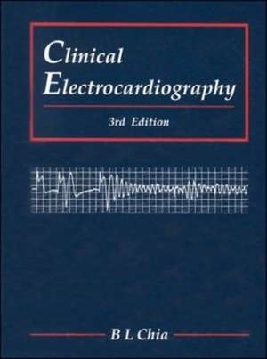 Clinical Electrocardiography (Third Edition)