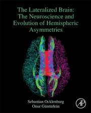 The Lateralized Brain: The Neuroscience and Evolution of Hemispheric Asymmetries