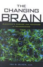 The Changing Brain: Alzheimer's Disease and Advances in Neuroscience