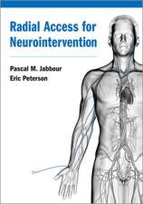Radial Access for Neurointervention
