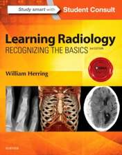 Learning Radiology Recognizing the Basics: Herring Radiologie
