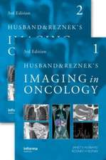 Husband and Reznek's Imaging in Oncology, Third Edition