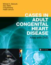 Cases in Adult Congenital Heart Disease - Expert Consult: Online and Print: Atlas