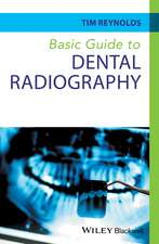 Basic Guide to Dental Radiography