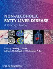 Non–Alcoholic Fatty Liver Disease: A Practical Guide