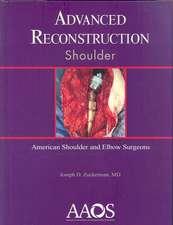 Advanced Reconstrution Shoulder
