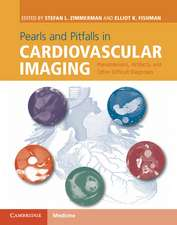 Pearls and Pitfalls in Cardiovascular Imaging: Pseudolesions, Artifacts, and Other Difficult Diagnoses