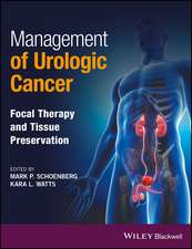 Management of Urologic Cancer: Focal Therapy and Tissue Preservation