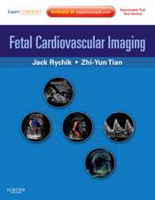 Fetal Cardiovascular Imaging: A Disease Based Approach: Expert Consult Premium Edition: Enhanced Online Features and Print
