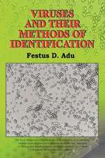 Viruses and Their Methods of Identification