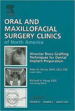 Alveolar Bone Grafting Techniques for Dental Implant Preparation, An Issue of Oral and Maxillofacial Surgery Clinics