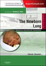 The Newborn Lung: Neonatology Questions and Controversies: Expert Consult - Online and Print