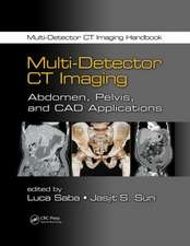 Multi-Detector CT Imaging:  Abdomen, Pelvis, and CAD Applications