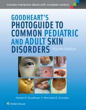 Goodheart's Photoguide to Common Pediatric and Adult Skin Disorders