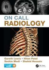 On Call Radiology