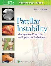 Patellar Instability: Management Principles and Operative Techniques