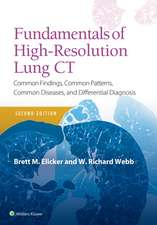 Fundamentals of High-Resolution Lung CT: Common Findings, Common Patterns, Common Diseases and Differential Diagnosis