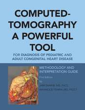 Computed-Tomography a Powerful Tool for Diagnosis of Pediatric and Adult Congenital Heart Disease: Methodology and Interpretation Guide