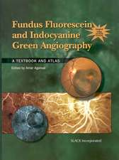 Fundus Fluorescein and Indocyanine Green Angiography: A Textbook and Atlas