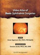 Video Atlas of Basic Ophthalmic Surgeries