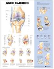 Knee Injuries Anatomical Chart