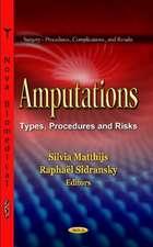 Amputations