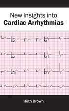 New Insights Into Cardiac Arrhythmias:  Clinical and Biological Characteristics
