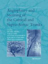 Angioplasty and Stenting of Carotid and Supra-Aortic Trunks