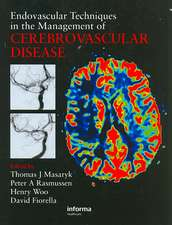 Endovascular Techniques in the Management of Cerebrovascular Disease