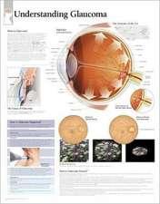 Understanding Glaucoma