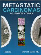 Metastatic Carcinomas of Unknown Origin
