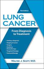 Lung Cancer: From Diagnosis to Treatment