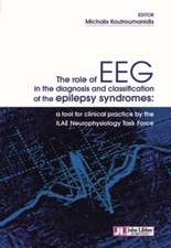 KOUTROUMANIDIS, M: The Role of EEG in the Diagnosis and Clas