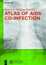 Atlas of AIDS Co-infection