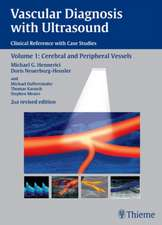 Vascular Diagnosis with Ultrasound: Clinical Reference with Case Studies