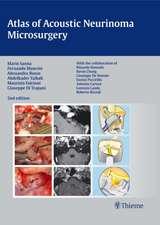 Atlas of Acoustic Neurinoma Microsurgery