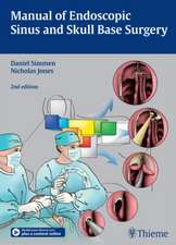 Manual of Endoscopic Sinus and Skull Base Surgery: and its Extended Applications Including Skull Base Surgery