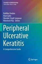 Peripheral Ulcerative Keratitis: A Comprehensive Guide