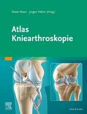 Atlas Kniearthroskopie