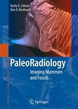Paleoradiology: Imaging Mummies and Fossils