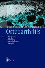 Osteoarthritis: Clinical and Experimental Aspects