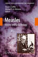 Measles: History and Basic Biology