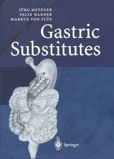 Gastric Substitutes