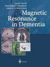 Magnetic Resonance in Dementia