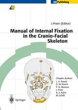 Manual of Internal Fixation in the Cranio-Facial Skeleton: Techniques Recommended by the AO/ASIF Maxillofacial Group