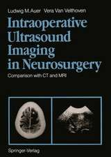 Intraoperative Ultrasound Imaging in Neurosurgery: Comparison with CT and MRI