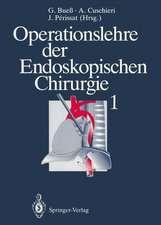 Operationslehre der Endoskopischen Chirurgie 1: Band 1