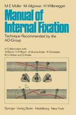 Manual of Internal Fixation: Technique Recommended by the AO-Group Swiss Association for the Study of Internal Fixation: ASIF